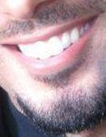 My_teeth